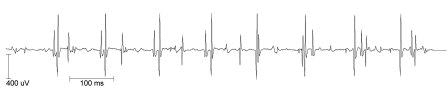 EMG 1